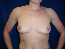 Breast Augmentation Before Photo by Thomas McNemar, MD; Tracy, CA - Case 7807