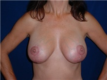 Breast Lift After Photo by Thomas McNemar, MD; Tracy, CA - Case 7811