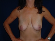 Breast Lift Before Photo by Thomas McNemar, MD; Tracy, CA - Case 7811