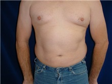 Liposuction After Photo by Thomas McNemar, MD; Tracy, CA - Case 7812