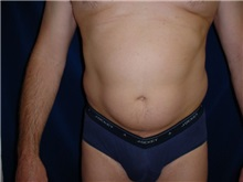 Liposuction Before Photo by Thomas McNemar, MD; Tracy, CA - Case 7812