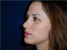 Rhinoplasty After Photo by Thomas McNemar, MD; Tracy, CA - Case 7817