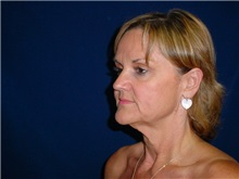 Facelift Before Photo by Thomas McNemar, MD; Tracy, CA - Case 7823