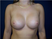 Breast Augmentation After Photo by Stanley Castor, MD; Tampa, FL - Case 39250