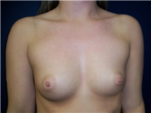 Breast Augmentation Before Photo by Stanley Castor, MD; Tampa, FL - Case 39250