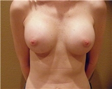 Breast Augmentation After Photo by Stanley Castor, MD; Tampa, FL - Case 39251