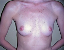 Breast Augmentation Before Photo by Stanley Castor, MD; Tampa, FL - Case 39251