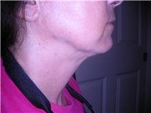 Liposuction After Photo by Stanley Castor, MD; Tampa, FL - Case 39296