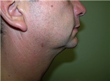 Liposuction After Photo by Stanley Castor, MD; Tampa, FL - Case 39300