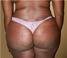 Buttock Lift with Augmentation After Photo by Stanley Castor, MD; Tampa, FL - Case 39312