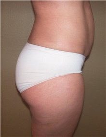 Buttock Lift with Augmentation After Photo by Stanley Castor, MD; Tampa, FL - Case 39313