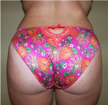Buttock Lift with Augmentation After Photo by Stanley Castor, MD; Tampa, FL - Case 39316