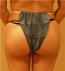 Buttock Lift with Augmentation After Photo by Stanley Castor, MD; Tampa, FL - Case 39317