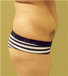 Buttock Lift with Augmentation Before Photo by Stanley Castor, MD; Tampa, FL - Case 39319