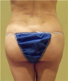 Buttock Lift with Augmentation After Photo by Stanley Castor, MD; Tampa, FL - Case 39320