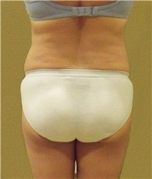Buttock Lift with Augmentation Before Photo by Stanley Castor, MD; Tampa, FL - Case 39320