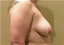 Breast Lift After Photo by Stanley Castor, MD; Tampa, FL - Case 39422