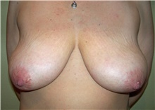 Breast Lift Before Photo by Stanley Castor, MD; Tampa, FL - Case 39426