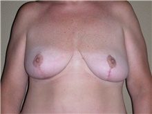 Breast Lift After Photo by Stanley Castor, MD; Tampa, FL - Case 39427