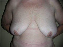 Breast Lift Before Photo by Stanley Castor, MD; Tampa, FL - Case 39427