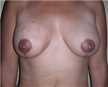 Breast Lift After Photo by Stanley Castor, MD; Tampa, FL - Case 39428