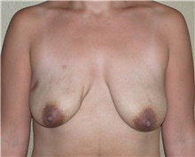 Breast Lift Before Photo by Stanley Castor, MD; Tampa, FL - Case 39428
