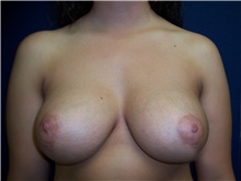 Breast Lift After Photo by Stanley Castor, MD; Tampa, FL - Case 39431