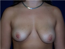 Breast Lift Before Photo by Stanley Castor, MD; Tampa, FL - Case 39431