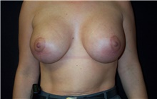 Breast Lift After Photo by Stanley Castor, MD; Tampa, FL - Case 39434
