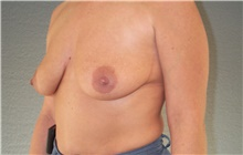 Breast Lift Before Photo by Stanley Castor, MD; Tampa, FL - Case 39434