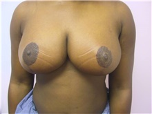 Breast Reduction After Photo by Stanley Castor, MD; Tampa, FL - Case 39440