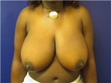 Breast Reduction Before Photo by Stanley Castor, MD; Tampa, FL - Case 39440