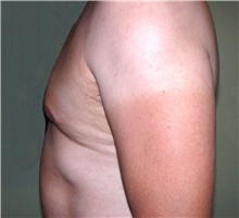 Male Breast Reduction After Photo by Stanley Castor, MD; Tampa, FL - Case 39454