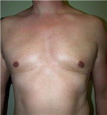Male Breast Reduction After Photo by Stanley Castor, MD; Tampa, FL - Case 39455
