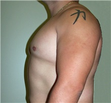 Male Breast Reduction After Photo by Stanley Castor, MD; Tampa, FL - Case 39456