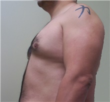 Male Breast Reduction Before Photo by Stanley Castor, MD; Tampa, FL - Case 39456