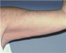 Arm Lift After Photo by Stanley Castor, MD; Tampa, FL - Case 39462