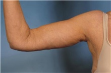 Arm Lift After Photo by Stanley Castor, MD; Tampa, FL - Case 39466