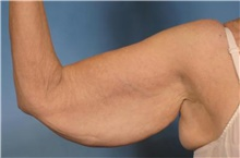 Arm Lift Before Photo by Stanley Castor, MD; Tampa, FL - Case 39466