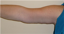 Arm Lift After Photo by Stanley Castor, MD; Tampa, FL - Case 39467