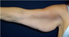 Arm Lift Before Photo by Stanley Castor, MD; Tampa, FL - Case 39467
