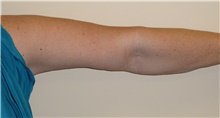 Arm Lift After Photo by Stanley Castor, MD; Tampa, FL - Case 39468