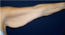 Arm Lift Before Photo by Stanley Castor, MD; Tampa, FL - Case 39468