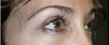 Eyelid Surgery After Photo by Stanley Castor, MD; Tampa, FL - Case 39475
