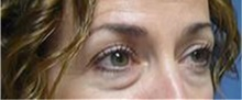 Eyelid Surgery Before Photo by Stanley Castor, MD; Tampa, FL - Case 39475
