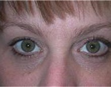 Eyelid Surgery After Photo by Stanley Castor, MD; Tampa, FL - Case 39478