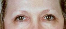 Eyelid Surgery After Photo by Stanley Castor, MD; Tampa, FL - Case 39480