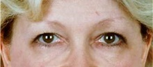 Eyelid Surgery Before Photo by Stanley Castor, MD; Tampa, FL - Case 39480