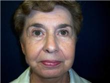 Facelift After Photo by Stanley Castor, MD; Tampa, FL - Case 39489
