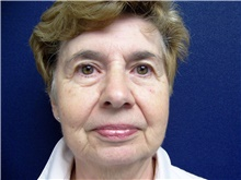 Facelift Before Photo by Stanley Castor, MD; Tampa, FL - Case 39489